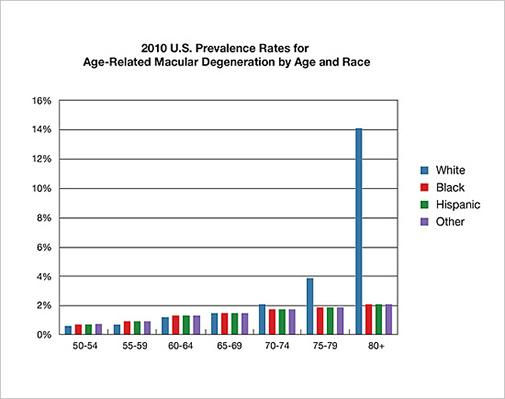 graph showing rates for age-related macular degeneration by age and race